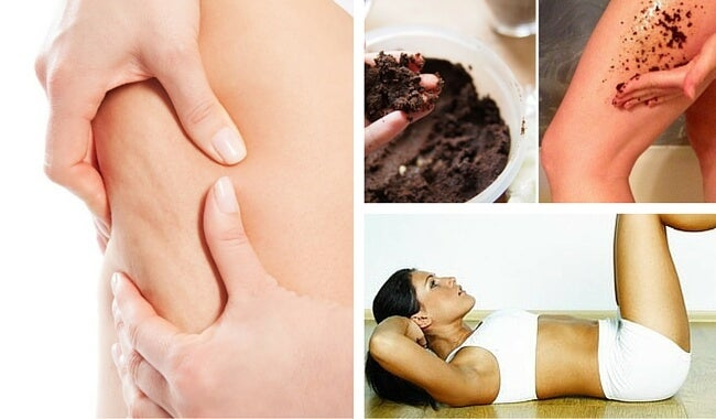7 consejos que debes aplicar si quieres prevenir la celulitis