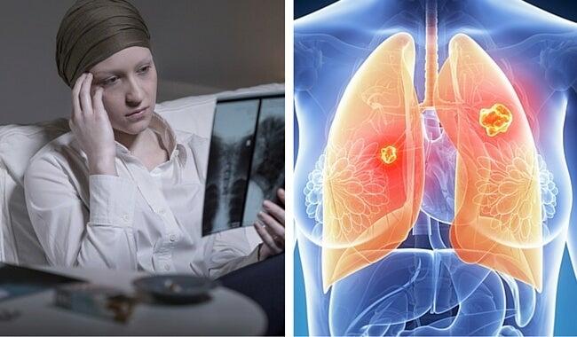 Cáncer de pulmón: el más mortal en la mujer