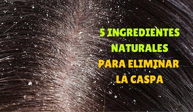 Cómo eliminar la caspa con ingredientes naturales
