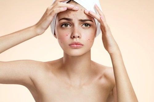 Mascarilla contra el acné