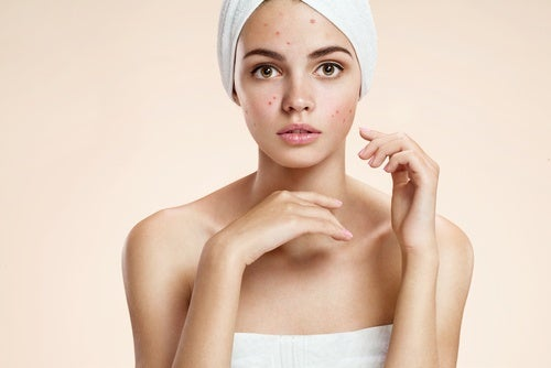 Pasos para las pieles con acné