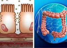 Qué es un intestino permeable y cómo puede afectar tu salud