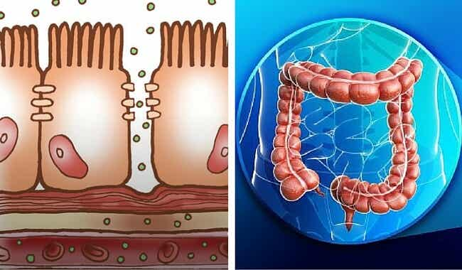 ¿Qué es un intestino permeable y cómo puede afectar tu salud?
