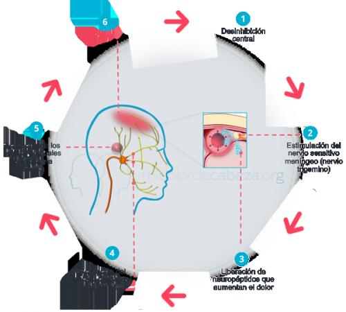 Ciclo de dolor en la migraña
