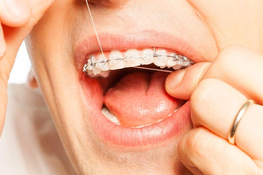 Usar hilo dental