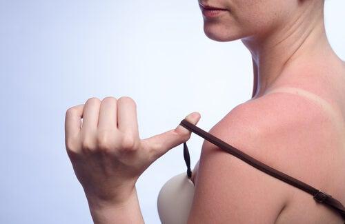 Sol y cáncer de piel