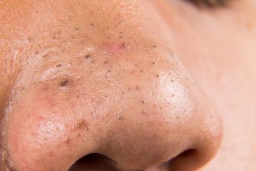 5 tratamientos caseros para combatir las espinillas