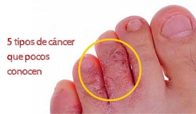 5 tipos de cáncer que pocos conocen