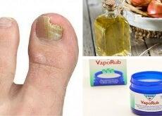 6 simples remedios para eliminar los hongos de las uñas