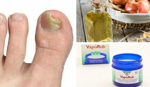 Como sanar el hongo de las uñas por medio del vinagre
