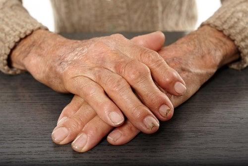 Alivia la artritis