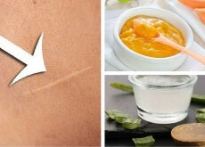 Cómo disminuir las cicatrices de tu piel de forma natural