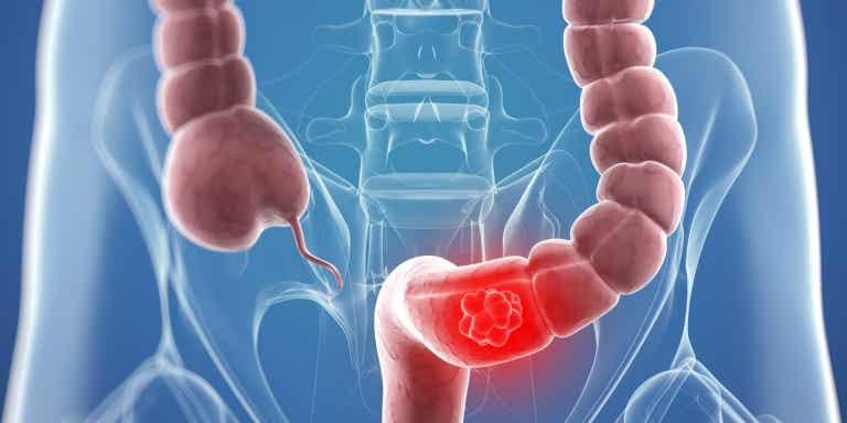 ¿Remedios naturales que ayudan en el tratamiento del cáncer de colon?
