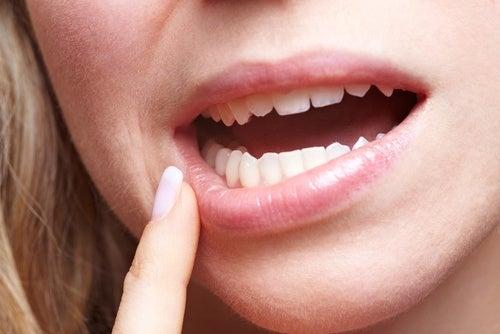 Deterioro dental