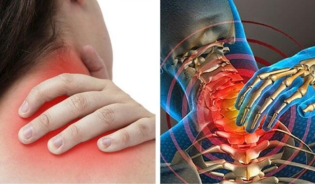 ¿Sientes dolor en el cuello? Estas 6 cosas podrían ser su causa