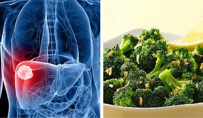 El brócoli es un buen protector frente al cáncer de hígado