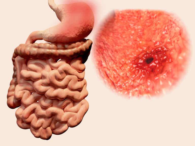 ¿Qué es la gastritis erosiva? Síntomas, causas y tratamiento