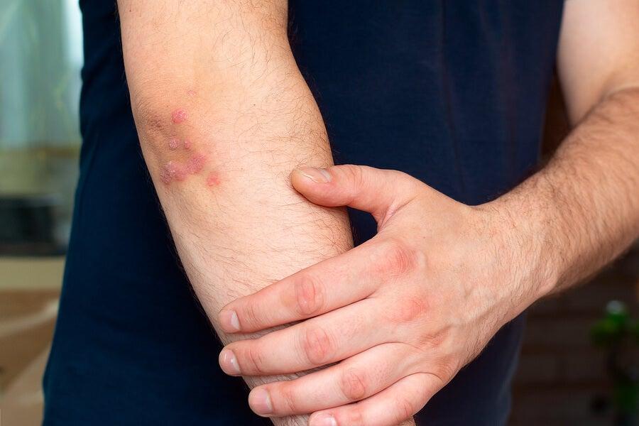 Hombre con psoriasis en el brazo.