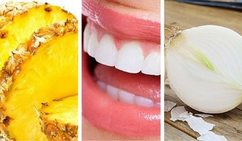 7 alimentos que blanquean tus dientes naturalmente