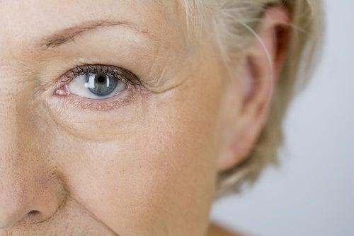 Mujer con arrugas en el rostro
