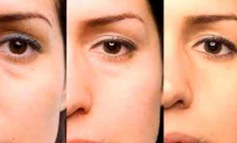 Las máscaras que alimentan para la persona con la arcilla