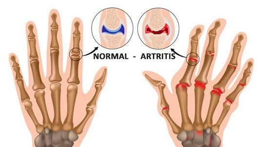 5 cosas que probablemente no sabías de la artritis