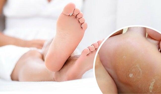 Elimina los callos de los pies con este remedio efectivo