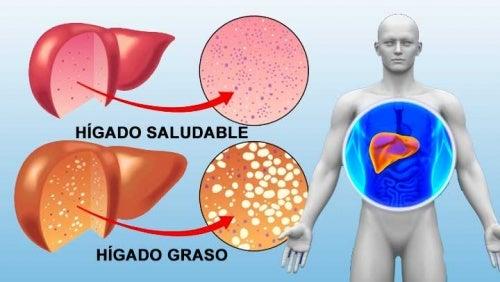 10 alimentos que puedes incluir en tu dieta para limpiar el hígado