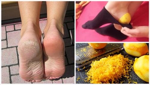 Descubre por qué deberías poner cáscara de limón en tus pies antes de ir a dormir