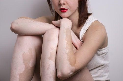 Qué saber sobre el vitiligo