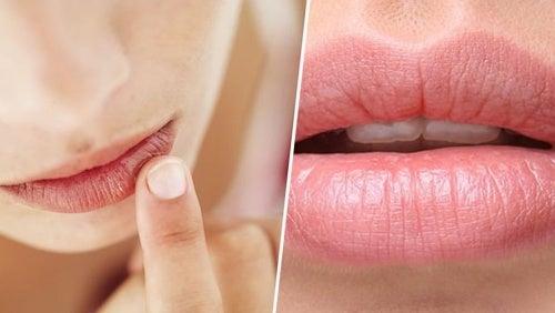 Qué dicen tus labios sobre tu salud