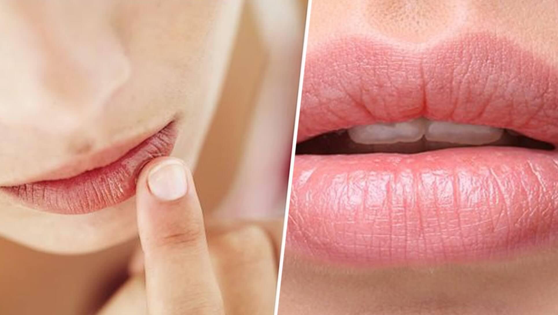 Que dicen labios sobre tu salud