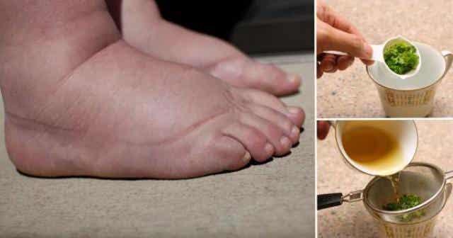 Este es uno de los mejores remedios para aliviar la hinchazón de los pies