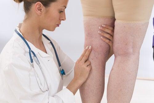 inflamación de las extremidades