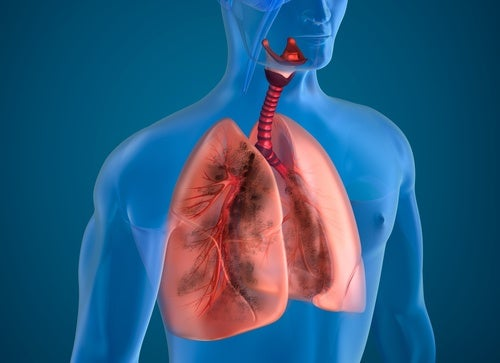 los pulmones y la insuficiencia cardíaca