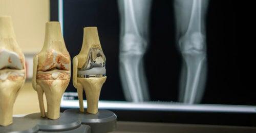 4 cosas que dicen tus rodillas sobre tu salud