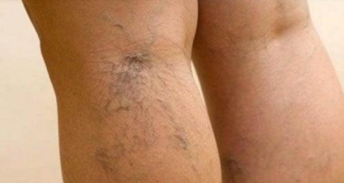 6 curiosidades que debes saber sobre las venas varicosas