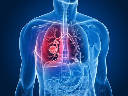 Conventional lung cancer treatment causes severe side effects.