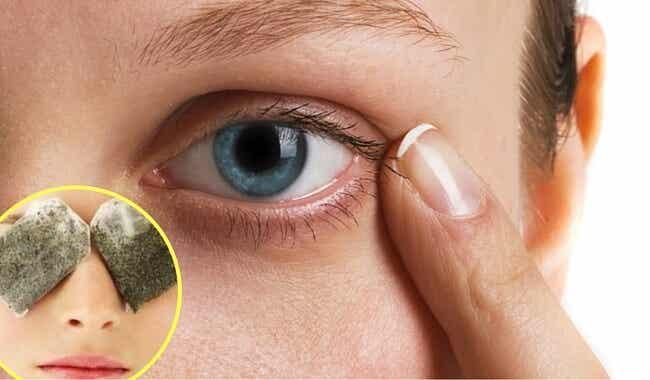 5 remedios naturales y efectivo para tratar las ojeras