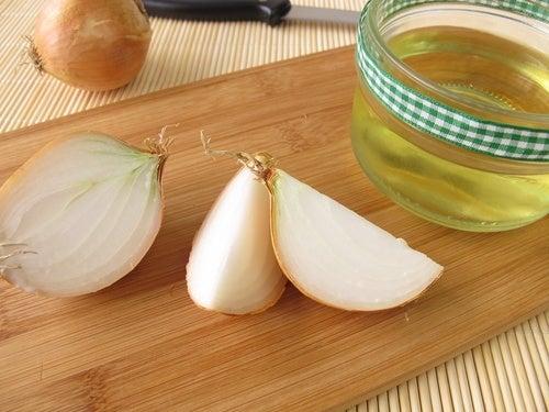 La cebolla es efectiva para prevenir la aparición de moretones.