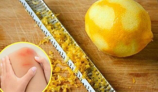Cómo utilizar cáscara de limón para calmar el dolor en las articulaciones