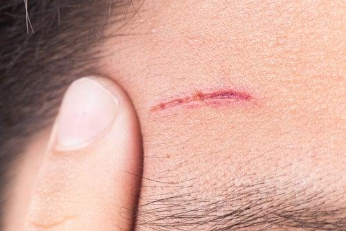 Dificultad para cicatrizar