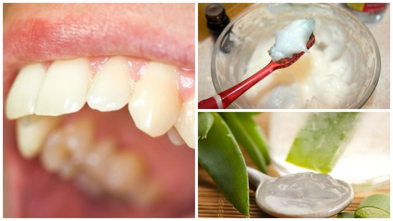 Elimina la placa dental con estos interesantes remedios naturales