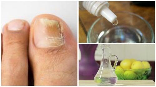 Fabrica tu propio rompehongos natural para las uñas