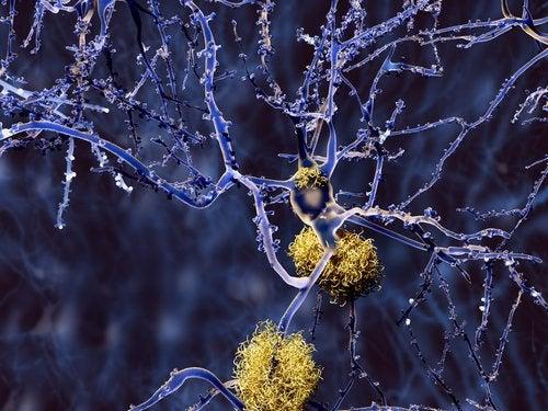 Propiedades de la cúrcuma contra el alzhéimer