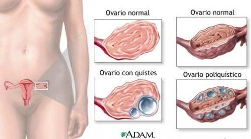 5 datos sobre los quistes ováricos que toda mujer debe saber