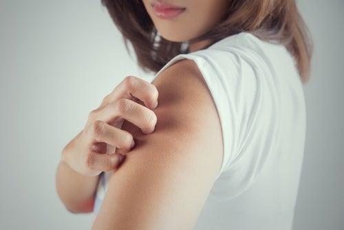 Se pueden curar los eczemas