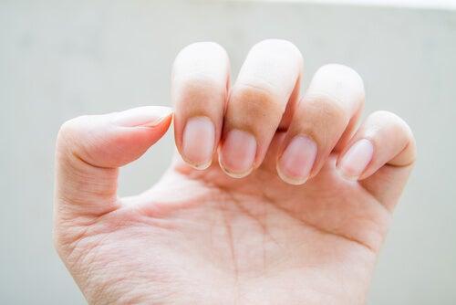 Los-productos-de-limpieza-o-abrasivos-nos-provocan-problemas-en-las-uñas.
