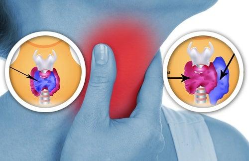 anomalia en la tiroide
