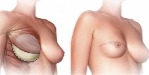 ¿Qué debes saber antes de la mastectomía?